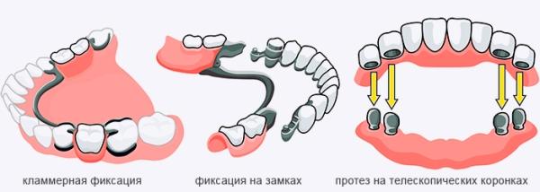 Болезнь десен под протезом
