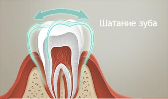 Если немного шатается зуб