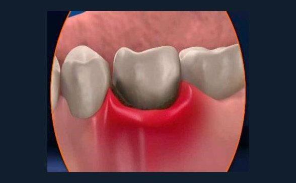 Что делать если шатаются зубы и болят десна