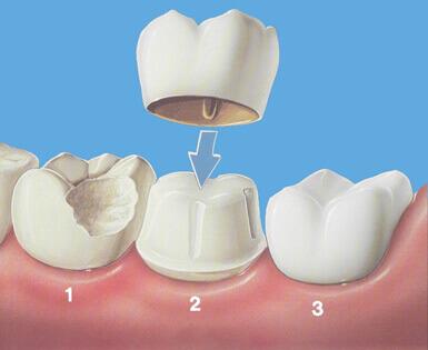 коронка на зуб