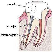 стоматологический штифт