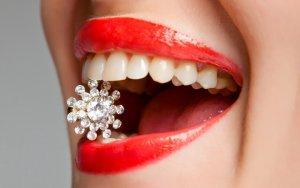 отбеливание зубов бутово