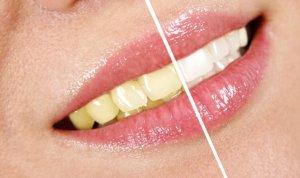 Отбеливание зубов лазерное — Зубы